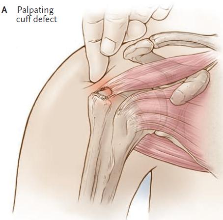 Anatomía 2012 - Ayudante Pablo Prado: Manguito Rotador