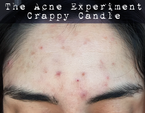 Breakout from Rosehip Seed Oil :: The Acne Experiment
