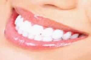 Teeth in an Hour Houston