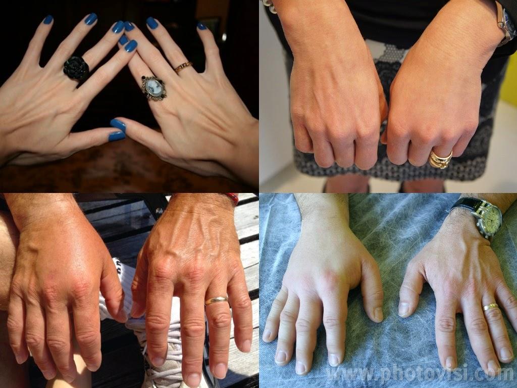 Skinny hands يد نحيفة قبل وبعد