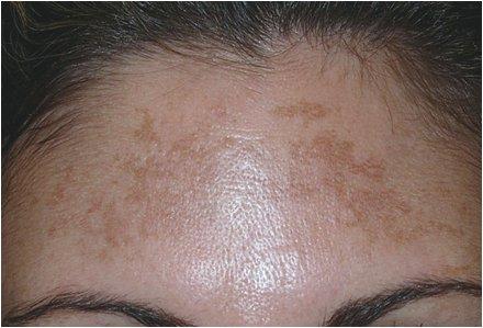 Resultado de imagen de fotos melasma facial