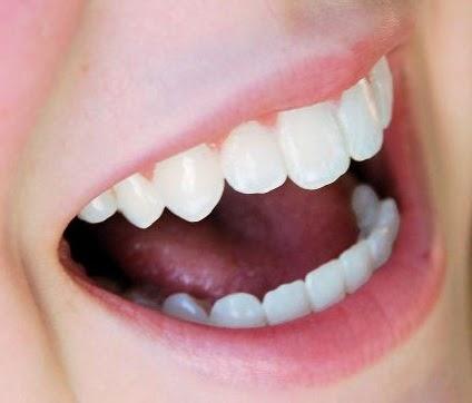 Cara mencantikkan bibir, tip mencantikkan bibir