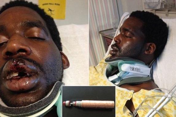 Vape meletup, lelaki Lelaki patah leher dan muka retak