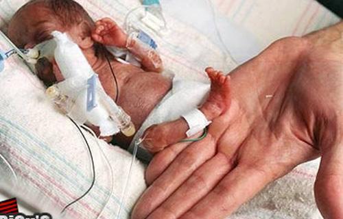 Menor bebê prematuro do país terá alta amanhã | Prematuridade.com