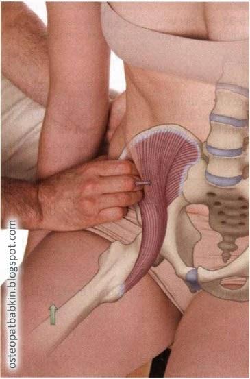 Пальпация подвздошной мышцы, или m. iliacus