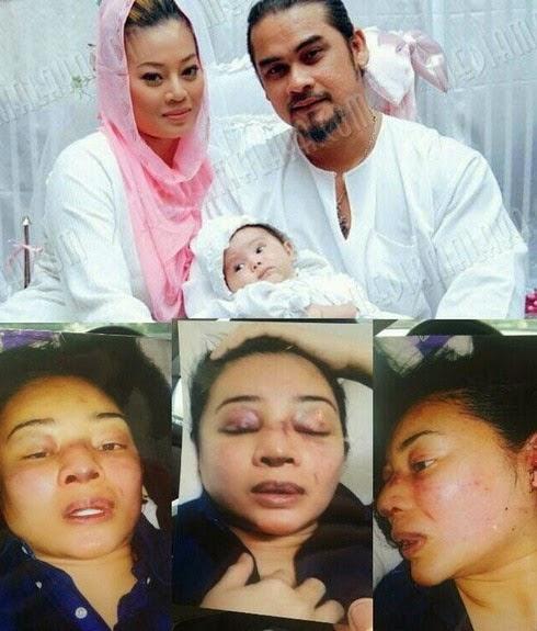Awie Mengaku Dipanggil Polis Isu Isteri Dipukul