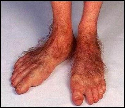 Image result for hobbit's foot