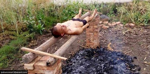 Tiada Wang Untuk Rawatan Leukimia Lelaki Ini Bakar Diri Sendiri Untuk Sembuh