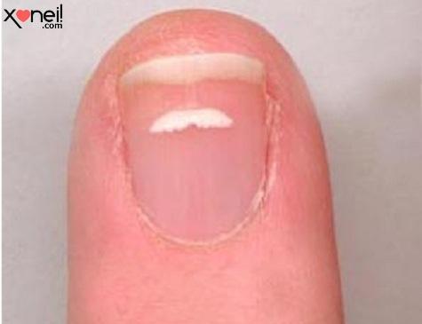 Tirinha Gordo Fresco: O que são essas manchas brancas que aparecem nas unhas?
