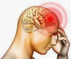 Gejala penyakit meningitis, radang selaput otak