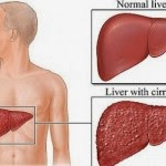 Tips Signs Cirrhosis: 4 Symptoms and Complications of Liver Cirrhosis