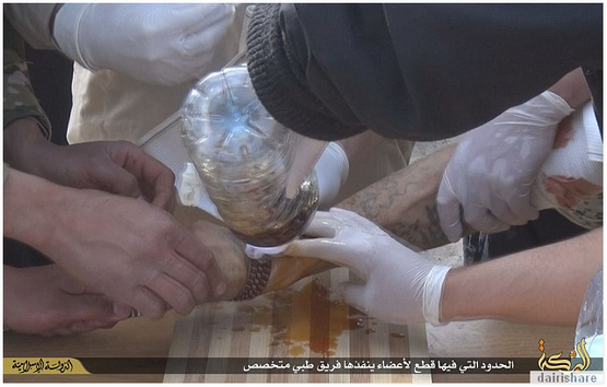 11 Gambar Jom Lihat Bagaimana Hukuman Potong Tangan Di Jalankan Di Iraq