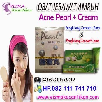 Obat Penghilang Jerawat Acne Pearl Cream
