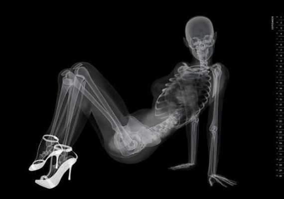 Рентген с порно