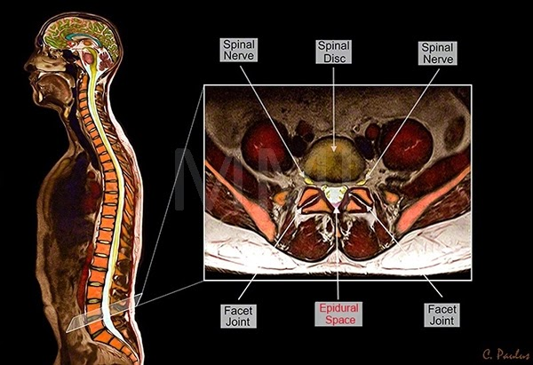 Axial Color MRI Lumbar Spine Anatomy and Epidural Space
