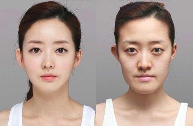 10 Fakta Menarik Tentang Operasi Plastik di Korea