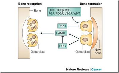 Osteoblast vs Osteoclast