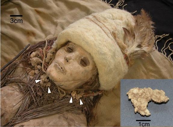ANAK panah menunjukkan cebisan keju yang terdapat di leher mumia yang ditemui di China.