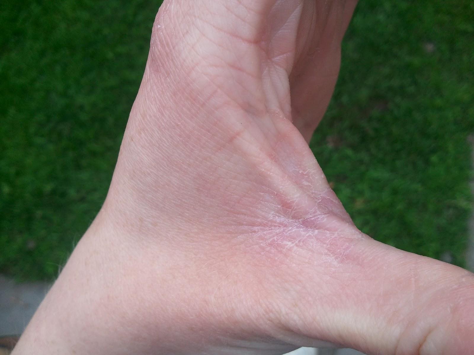 dry skin between fingers #10