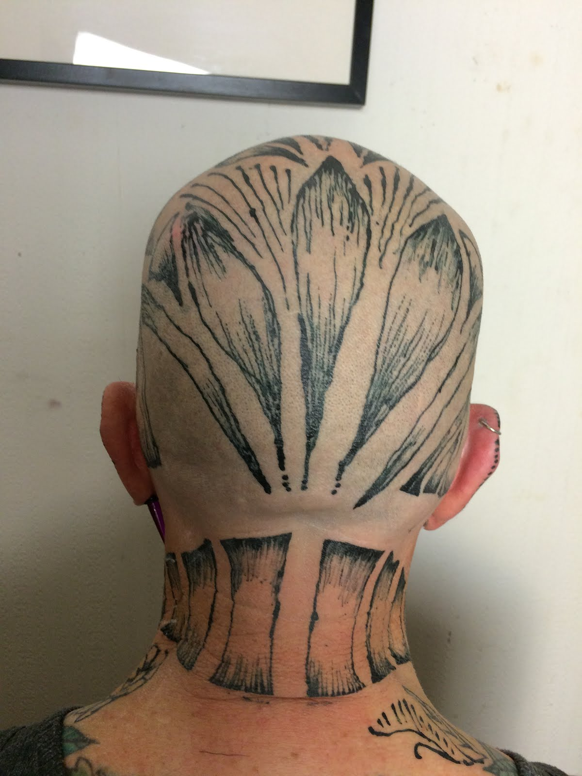 The back of my head in November 2015
