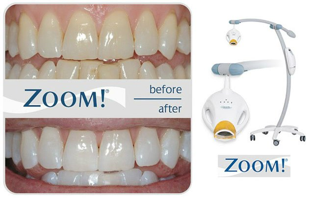 ZoOm! Tooth Whitening