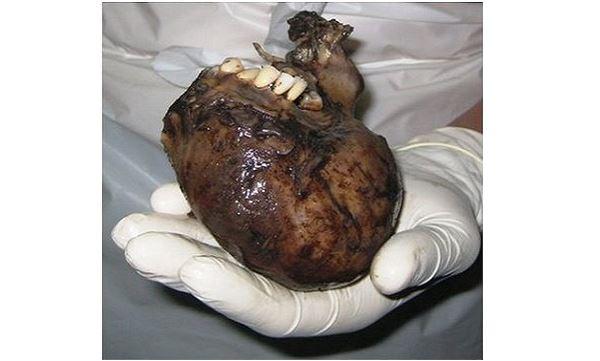 Ovarian Cyst that has hair, tooth, bones