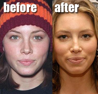 Jessica Biel Plastic Surgery Before After