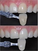 blanqueamiento interno diente con endodoncia