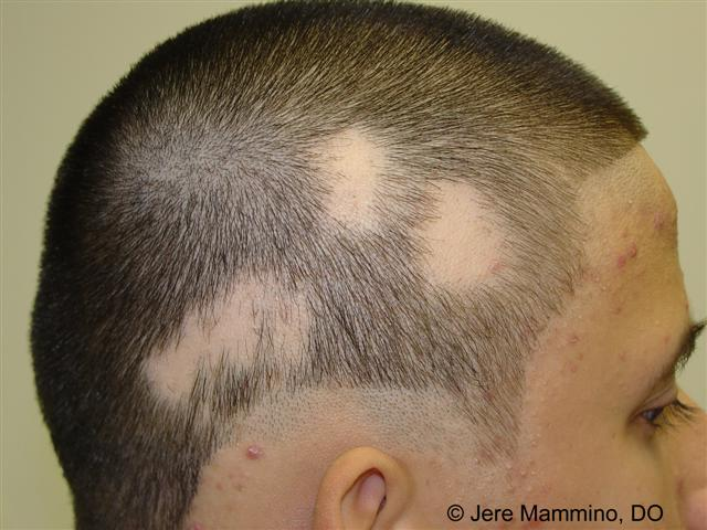 Fms406richmond knightanewelizabethans hair and skin diseases httpnhsconditionshair losspagesintroductionpx urmus Choice Image