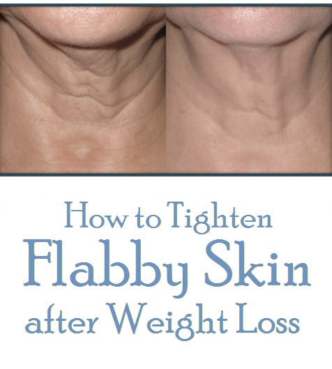 How to Tighten Flabby Skin after Weight Loss