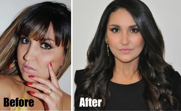 Antes e depois Vivian do blog Fabulous by Vivian