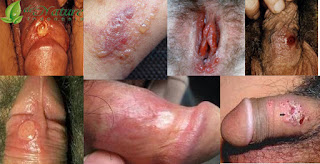 Obat Sipilis Ciprofloxacin