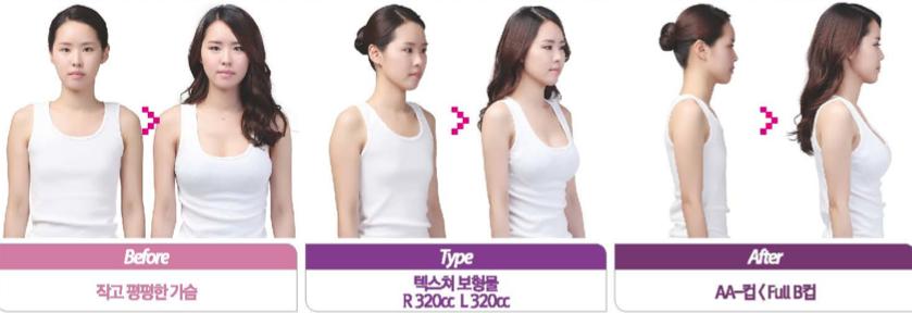 Synergy Plastic Surgery: [FAQ] on Breast Surgery~
