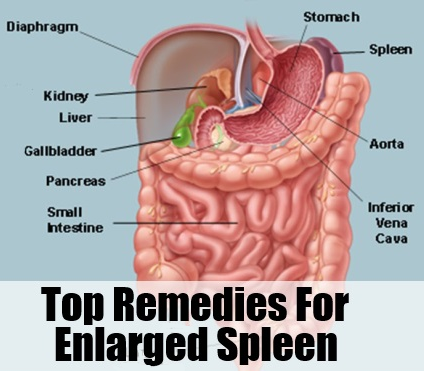 Causes Symptoms and Treatment of Spleenomegaly