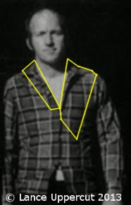 Outlined photo showing that only a small amount of Lovelady's shirt is visible in Altgens 6