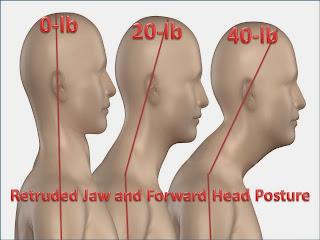 Ramin Mehregan GNM dentist, headaches, TMJ pain, neck and shoulder pain