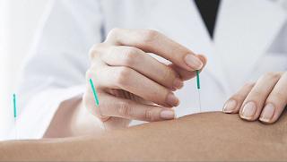 Controle da dor com Dry Needling e Magnetoterapia