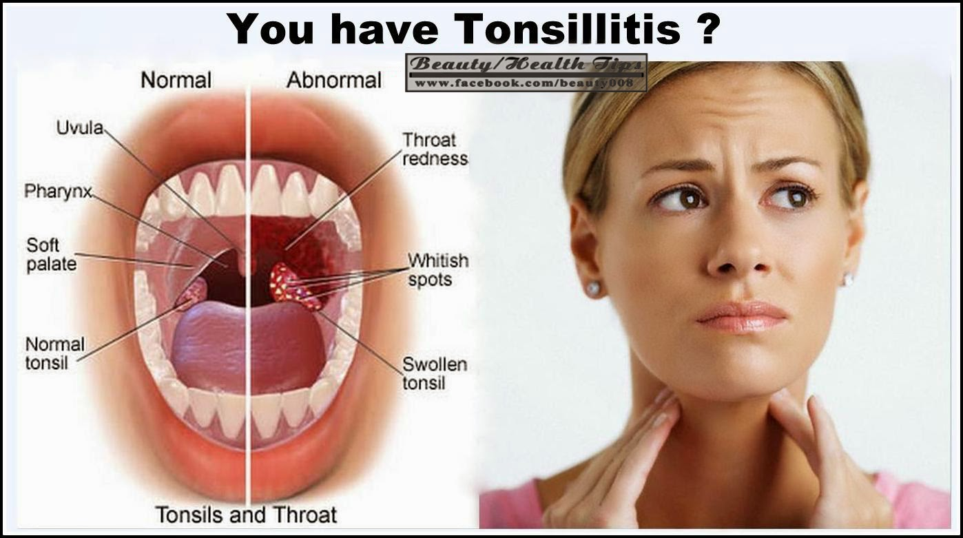 large tonsils in adults