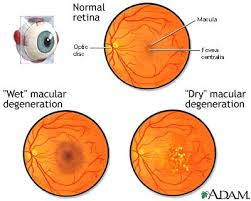 Cholesterol reducing drug can help in eye diseases and treatment
