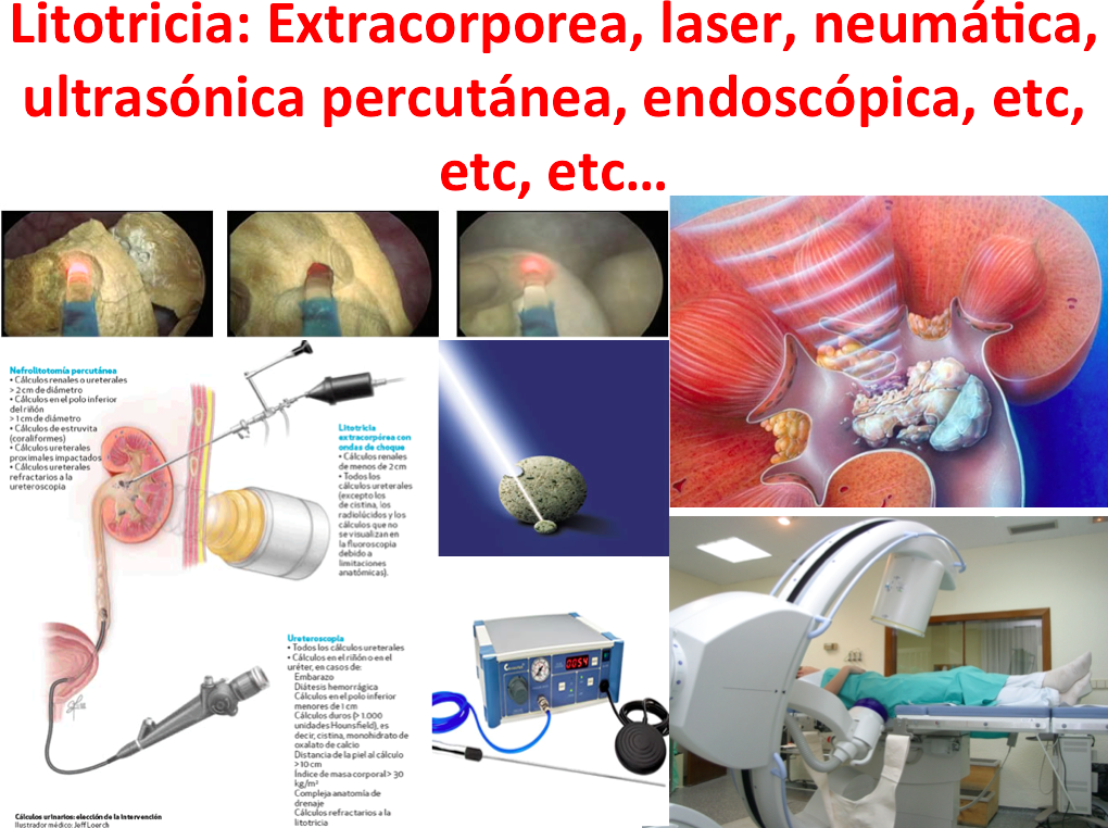 Dr. Jorge Saldaña Gallo: LITOTRICIA: CUAL ES MEJOR? TIPOS Y ...