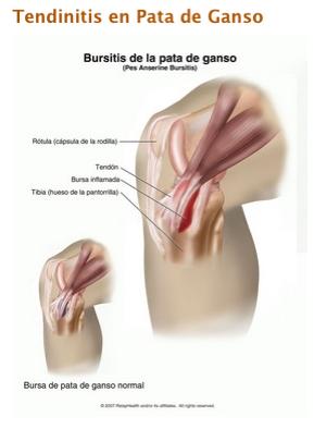 Miguel flor bursitis o tendinitis de pata de ganso - Dolor en la parte interior de la rodilla ...