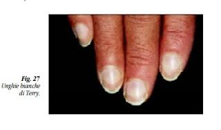mano con unghie bianche di Terry