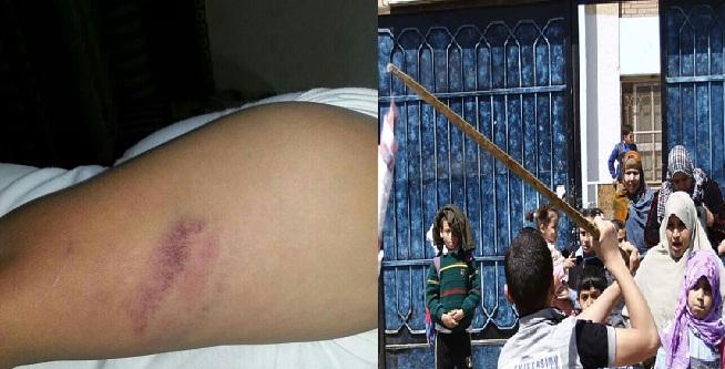 ويستمر مسلسل اعتداء الطلاب واولياء الامورعلى المعلمين بالمدارس بالضرب وقطع الشرايين