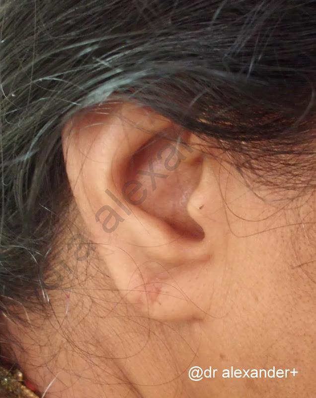 Face burns, plastic surgery, cosmetic surgery, Dr Alexander, plastic  title=