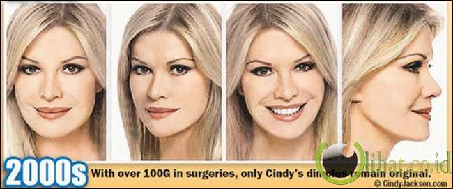 Cindy Jackson - Hasil Operasi Plastik tahun 2000 an