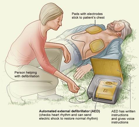 United States External Defibrillators Market