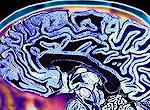 Scanner de cérebro identifica tendência violenta em criança