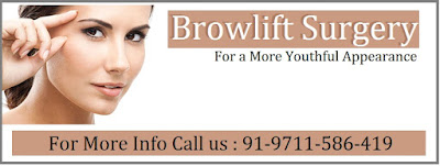 http://imageclinic.org/brow-lift-surgery.html