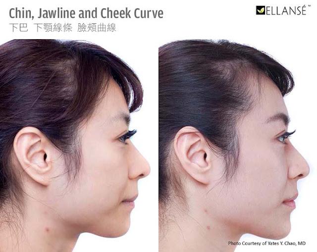 Ellanse (polycaprolactone, PCL) 可以同時改善輪廓和膚質