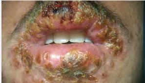 Herpes Pada Mulut